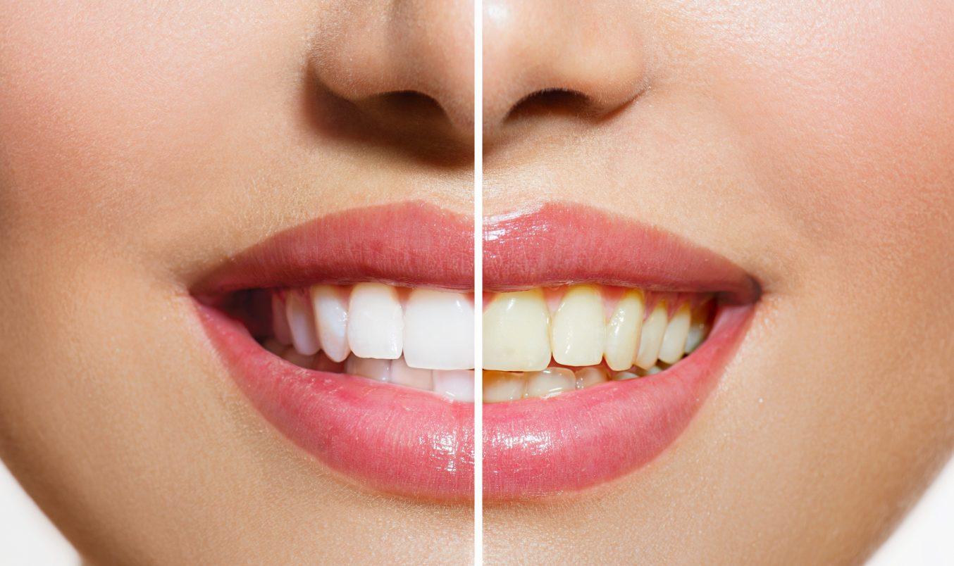 Γιατί να χρησιμοποιήσω λευκαντική οδοντόκρεμα;