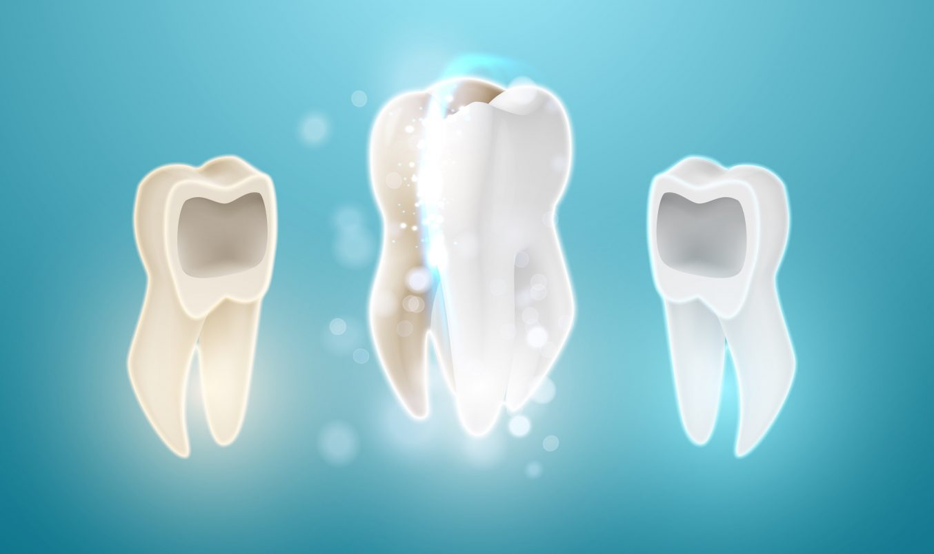 Έχω κάνει τεχνητή λεύκανση. Πως μπορώ να διατηρήσω τα δόντια μου λευκά;